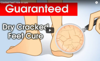cracked feet cure